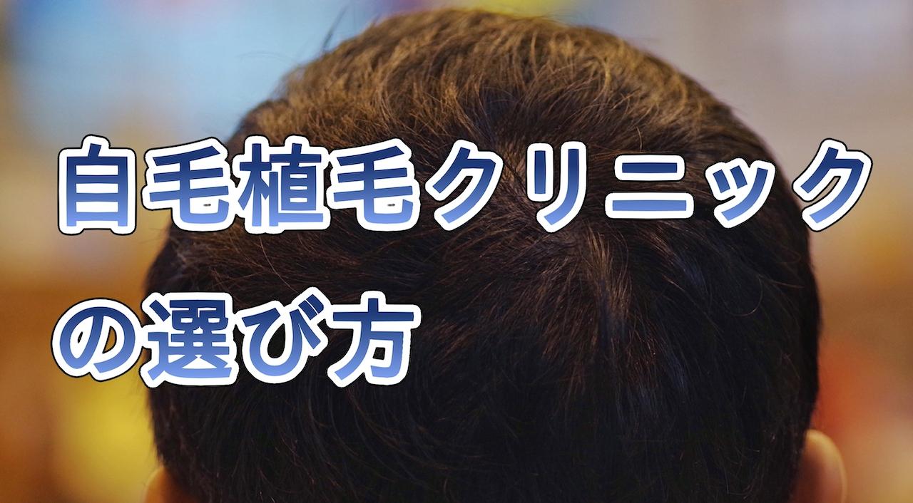 自毛植毛クリニックの選び方
