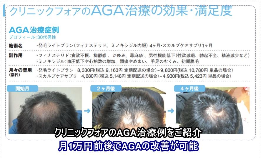 クリニックフォアのAGA治療の効果と評判