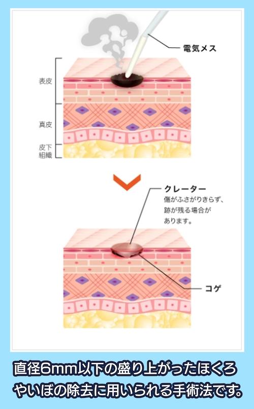 電気メスによる電気分解法